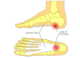 plantar fasciitis treatment exercises